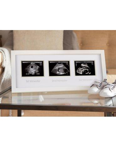 Pearhead Ramka na 3 Zdjęcia USG White